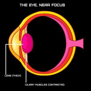 Eye Contracted